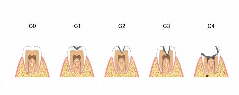 虫歯の進行ステージとそれぞれの対処法