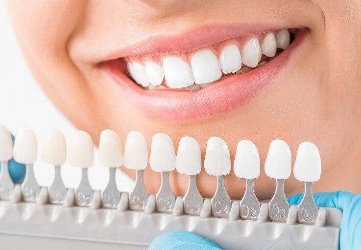 白い歯を実現するホワイトニング